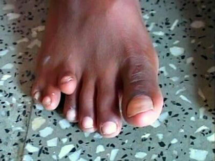NGH Toes