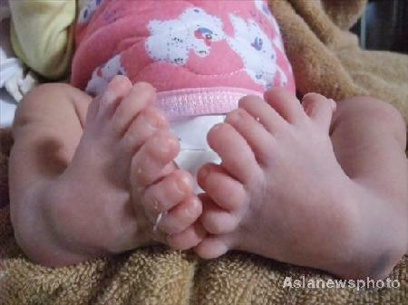 baby with more toes than you
